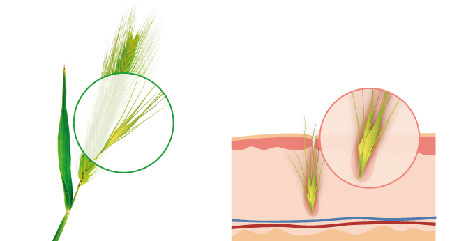 Illustrated close-up of a grass awn and second illustration of a grass awn embedded in skin.